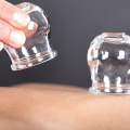 cupping massage benefits